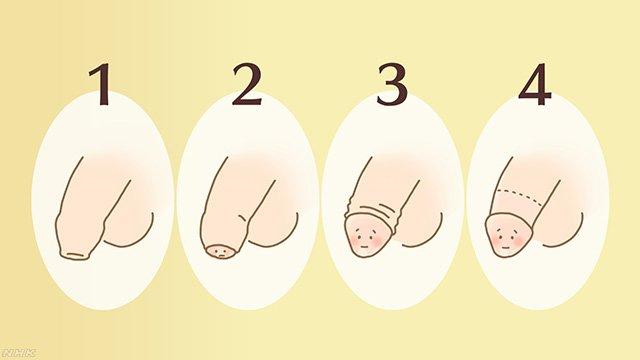 日本人男性の包茎の割合